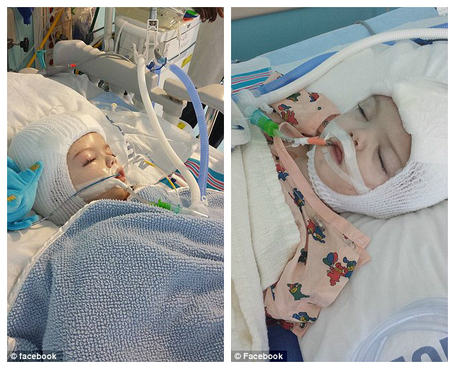 39628cf100000578-3838409-made-it-out-one-of-the-twins-jadon-pictured-is-recovering-in-his-a-20-1476472406282