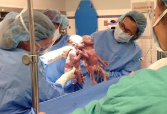 Эти малышки родились, держась за руки (10 фото)