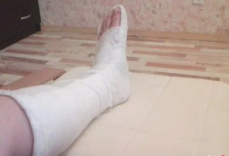 Вызов: травма ноги