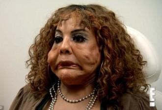 11 лет назад пластический хирург ввел ей под кожу цемент (10 фото)