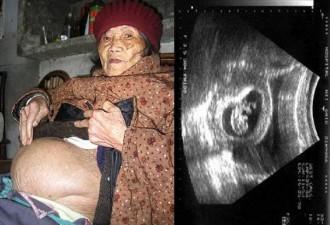 Беременность на протяжении 60-ти лет