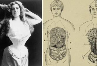 7 модных, смертельно опасных вещей из прошлого (7 фото)