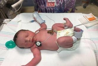 Благодаря врачам девочке удалось родиться дважды