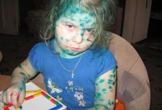 Я в детстве нашла зелёнку в аптечке