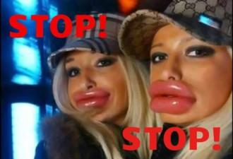 «Девушки, перестаньте накачивать губы!»