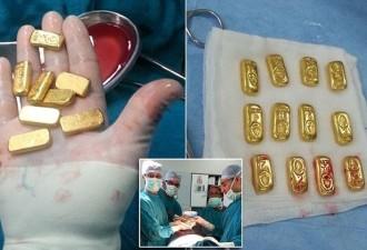Контрабанда золота опасным способом (4 фото)