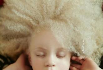 10 неземных людей-альбиносов, поражающих своей внешностью (10 фото)