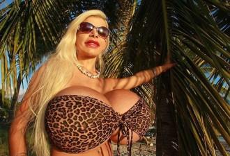 Немка, увеличившая грудь до 18-го размера, решила изменить цвет кожи (6 фото)