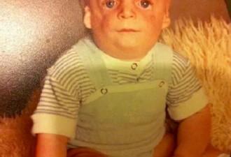 Родители отказались от него, когда ему было 36 часов (7 фото)