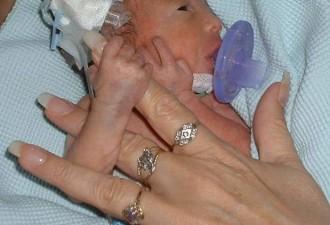 Этому ребёнку довелось пережить настоящий Ад, но маму расстроили больше всего эти слова (2 фото)