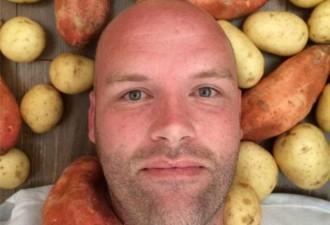 Мужчина целый год питался только картофелем (5 фото)