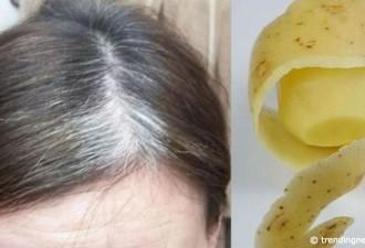 Чтобы избавиться от седых волос, нужна только картошка!
