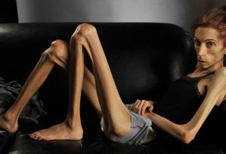 «Я пыталась, но анорексия победила меня…» (9 фото)