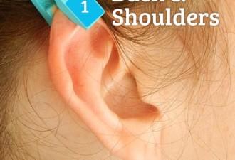 Как избавиться от болей с помощью обычной прищепки (5 фото)