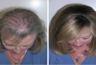 Это масло отлично подходит для укрепления волос, ресниц и бровей