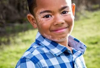 Мальчик с витилиго ненавидел свою внешность (5 фото)