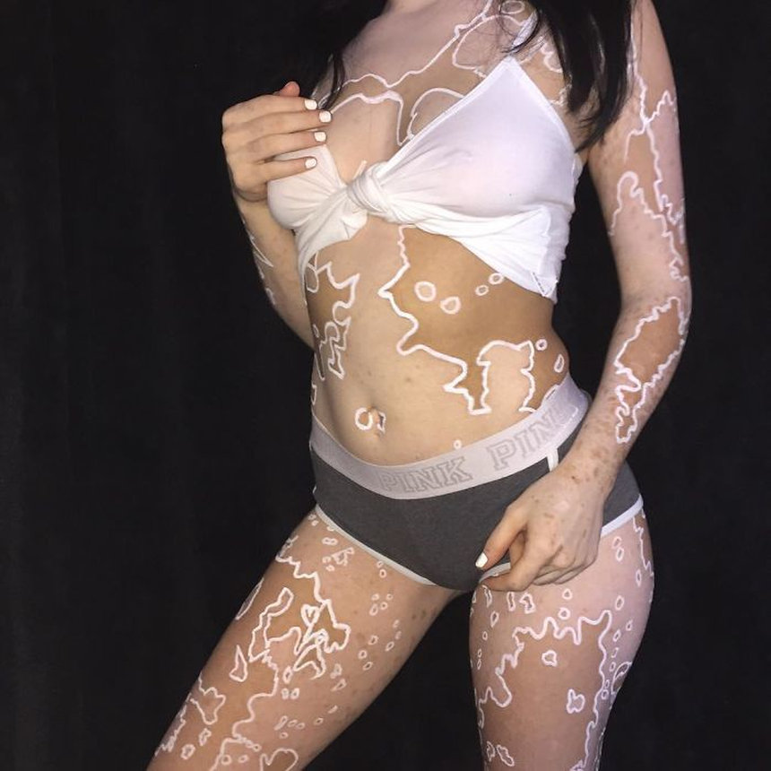 amerikanka-prevratila-bolezn-vitiligo-v-iskusstvo-quibbll-8