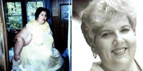 Рис.4 Розали Брэдфорд до и после похудения