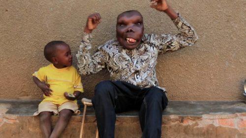 Рисунок 9. Самый уродливый и счастливый человек Уганды со своим сыном