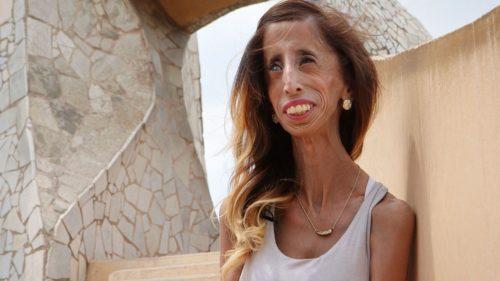 Рисунок 10. Причина такой внешности Лиззи Веласкес - заболевание Видемана-Раутенштрауха