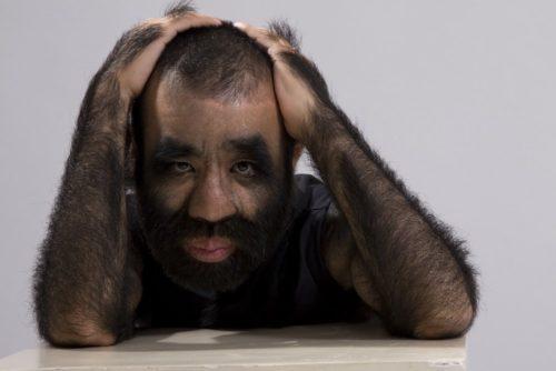 Рисунок 7. Самый волосатый человек в мире